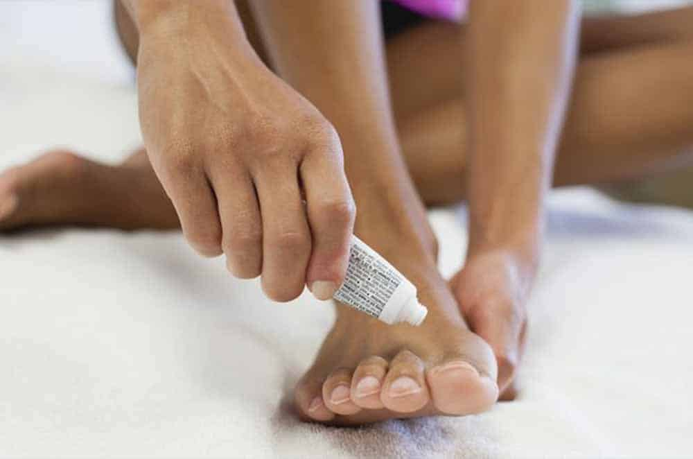 اسید بوریک در درمان قارچ پا